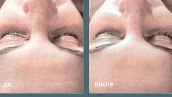 Миндальный и Лактобионовый пилинги результат NeosBioLab